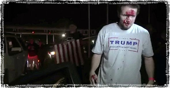 Trump Supporter who was Beaten by Illegals