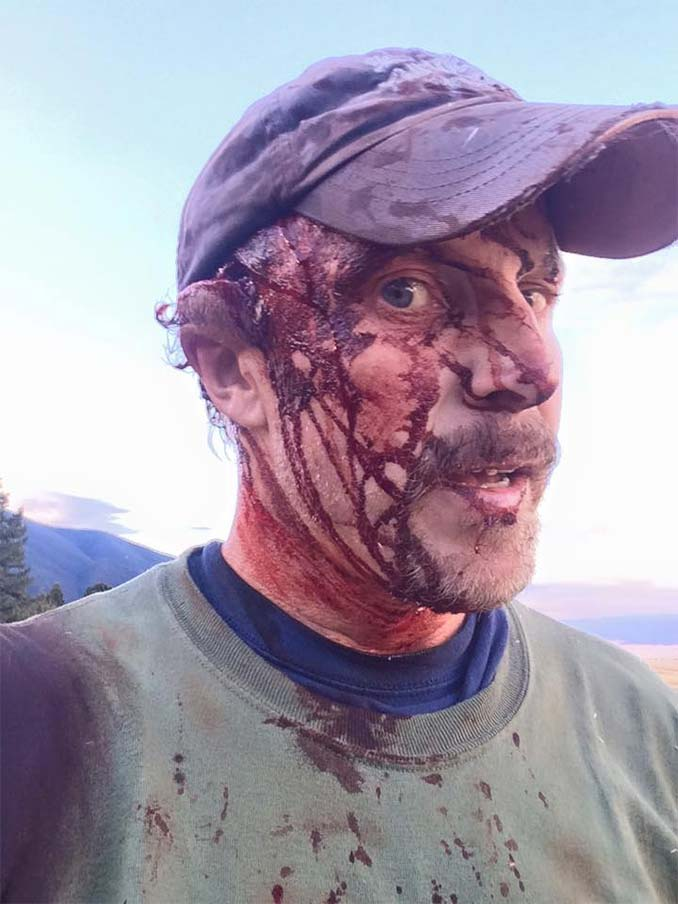 Todd Orr Grizzly Bear Attack