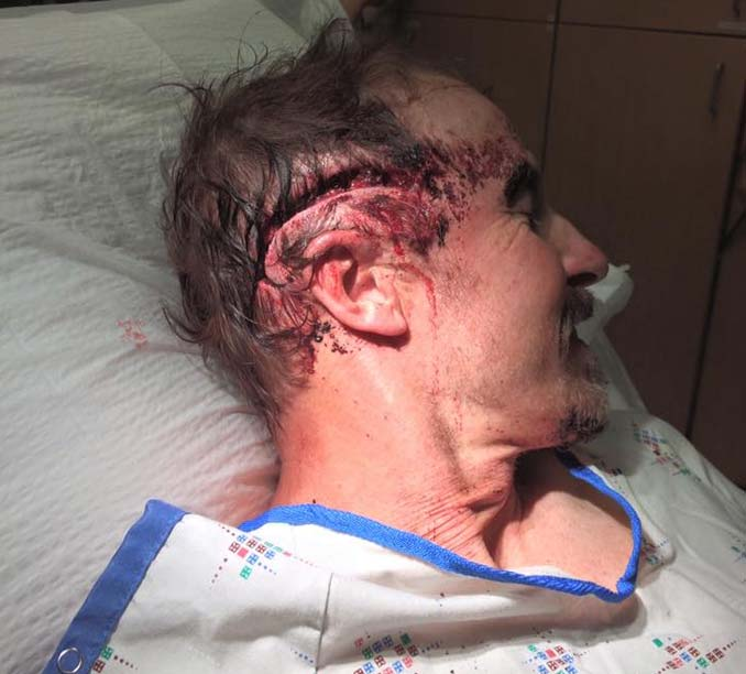 Todd Orr in Hospital